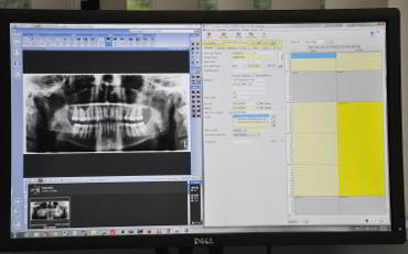 Dental-xray-results