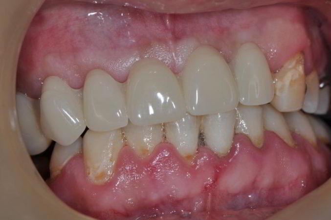 Partial Denture