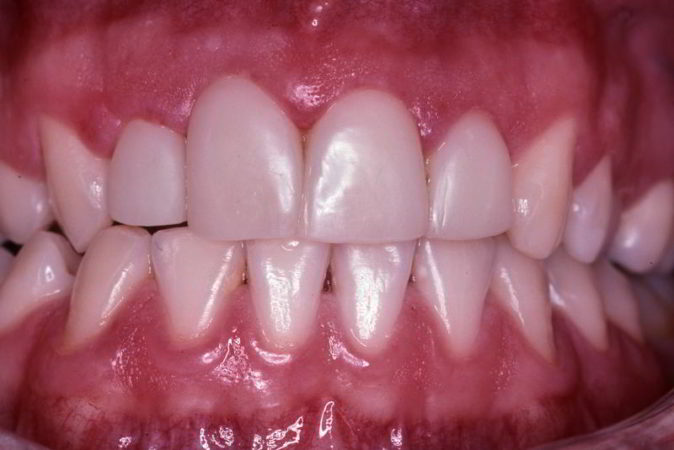 Tooth coloured fillings