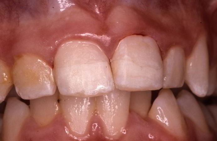 Tooth Trauma after-treatment